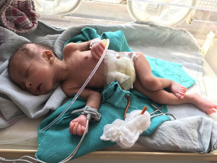 Baby Sherin is growing healthier after her surgery.