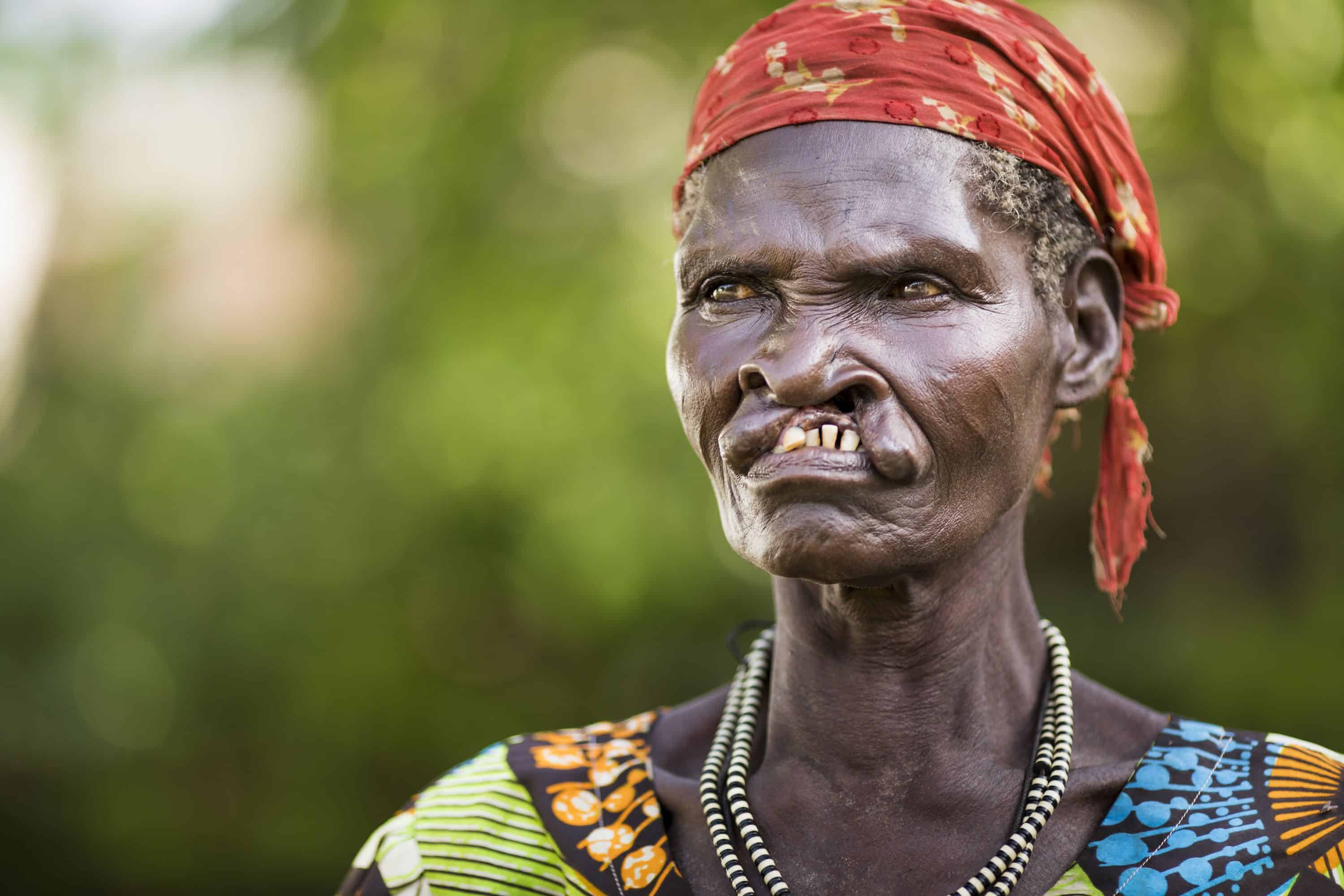 For her entire life Yunisa, 61, has been shunned because of her cleft lip.